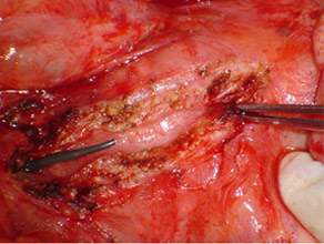 Opened pancreatic duct with stent inserted proximal to the stricture (forceps)